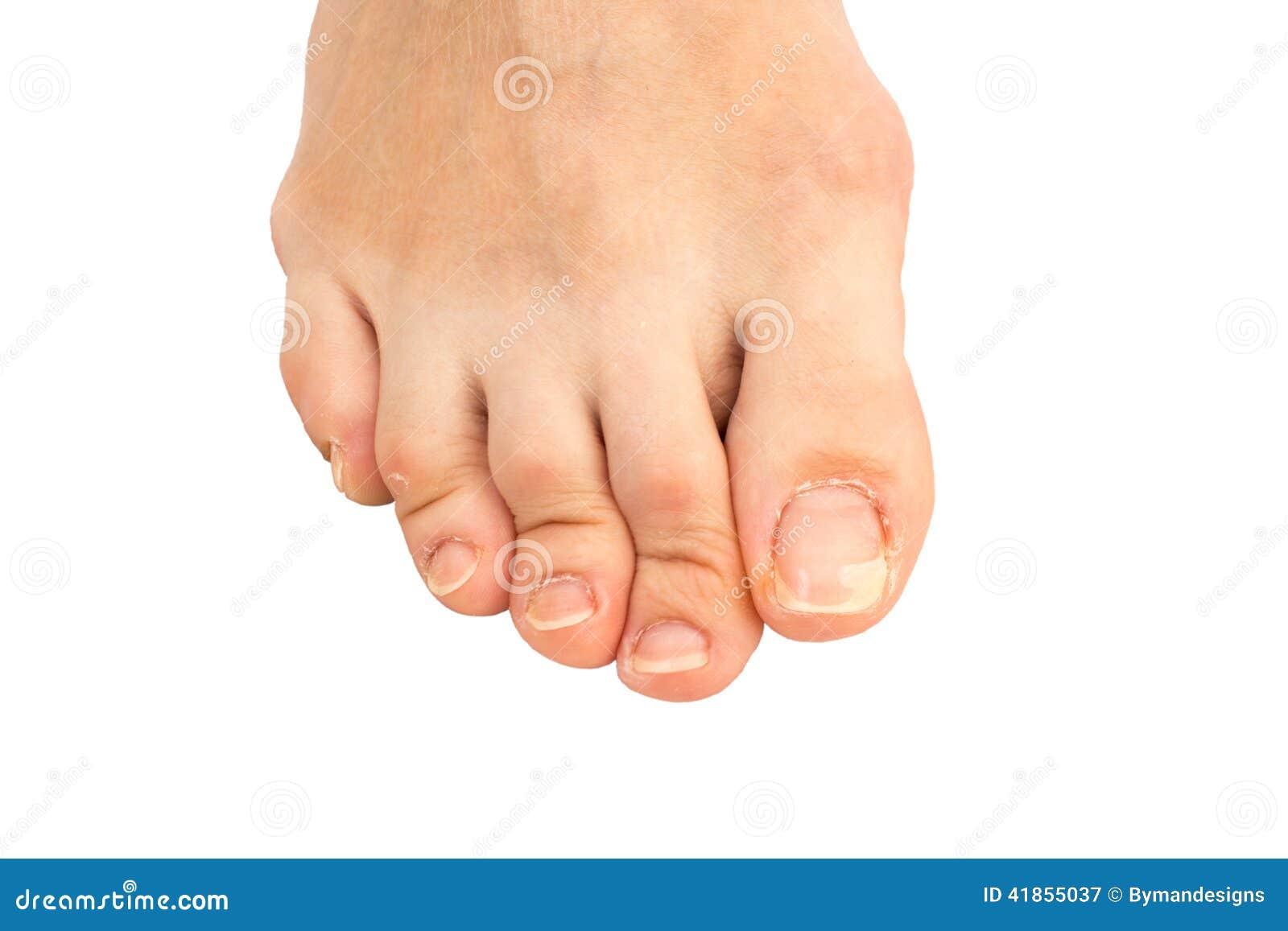 Ispessimento di unghie che sopportano ragioni trattamento
