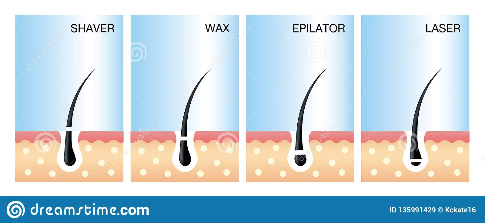 Diagram Of Laser Hair Removal Laser Hair Removal Vector  Stock Vector