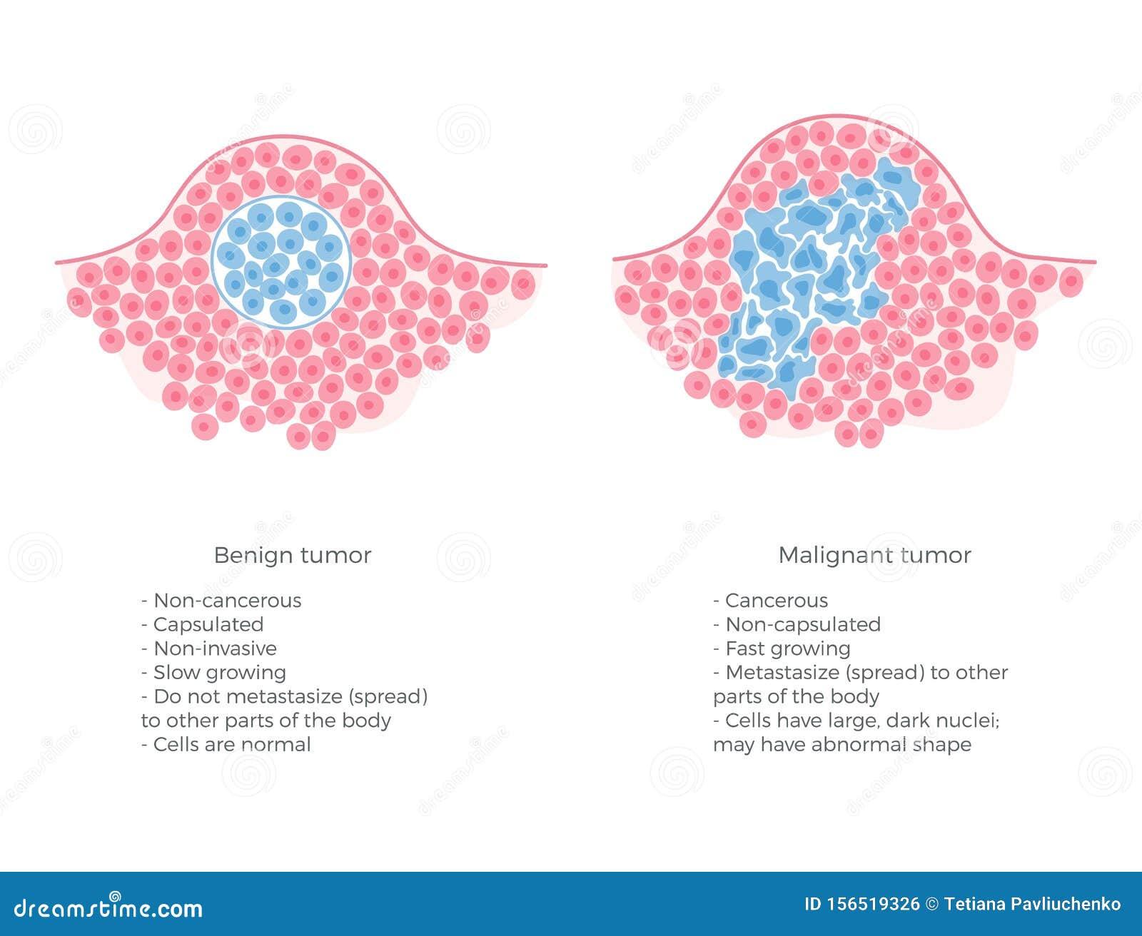 cancer being benign)