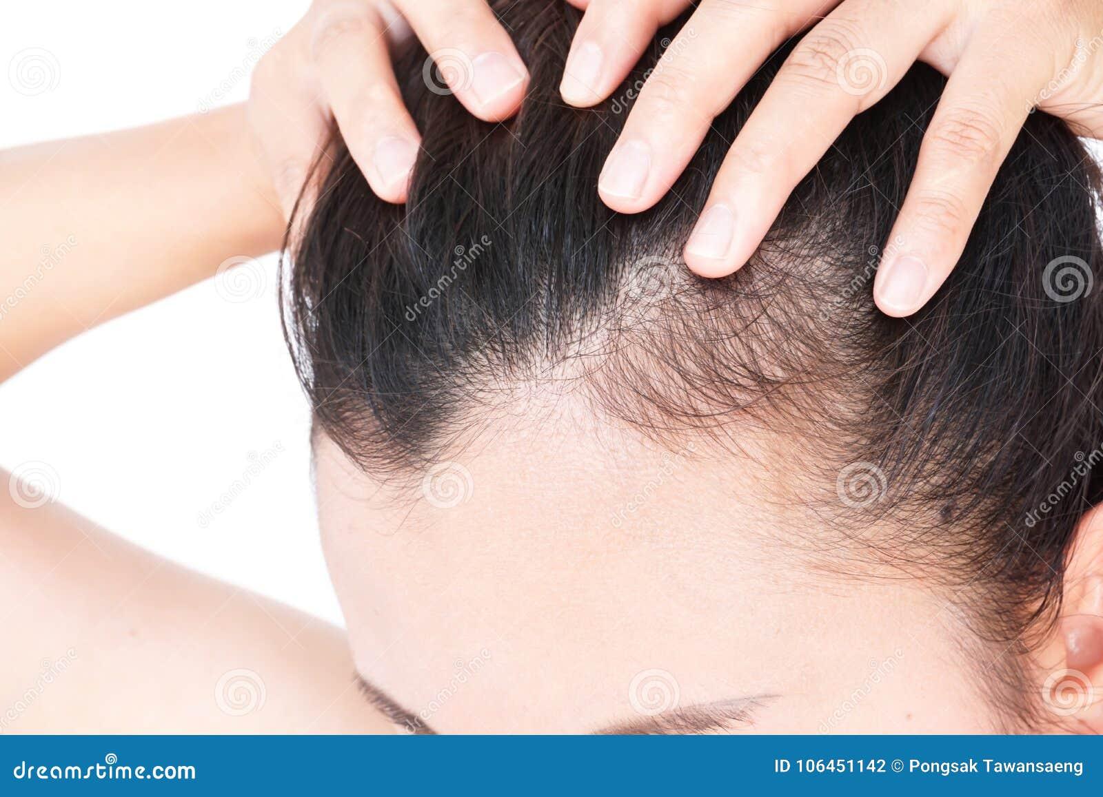 soin pour perte de cheveux