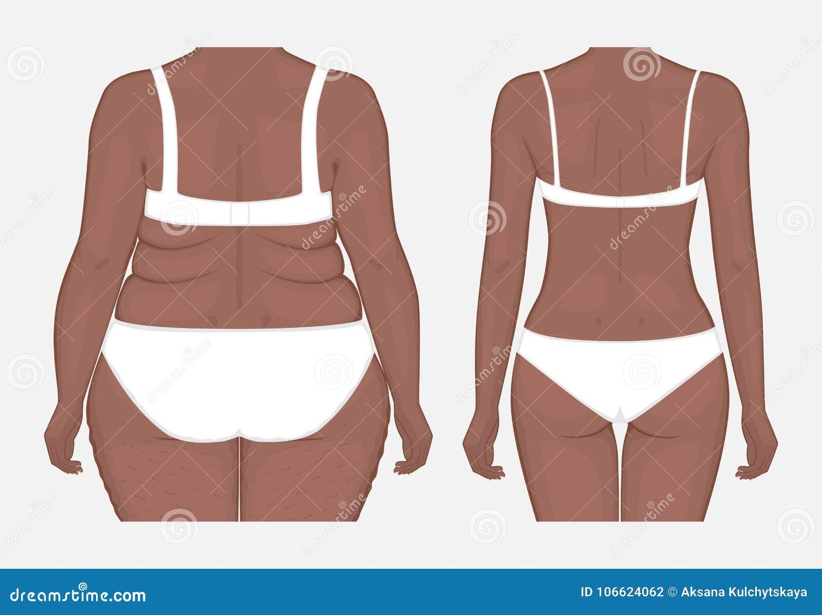Problem_Body Gewichtsverlust des menschlichen Körpers von Afroamerikanerfrauen Franc