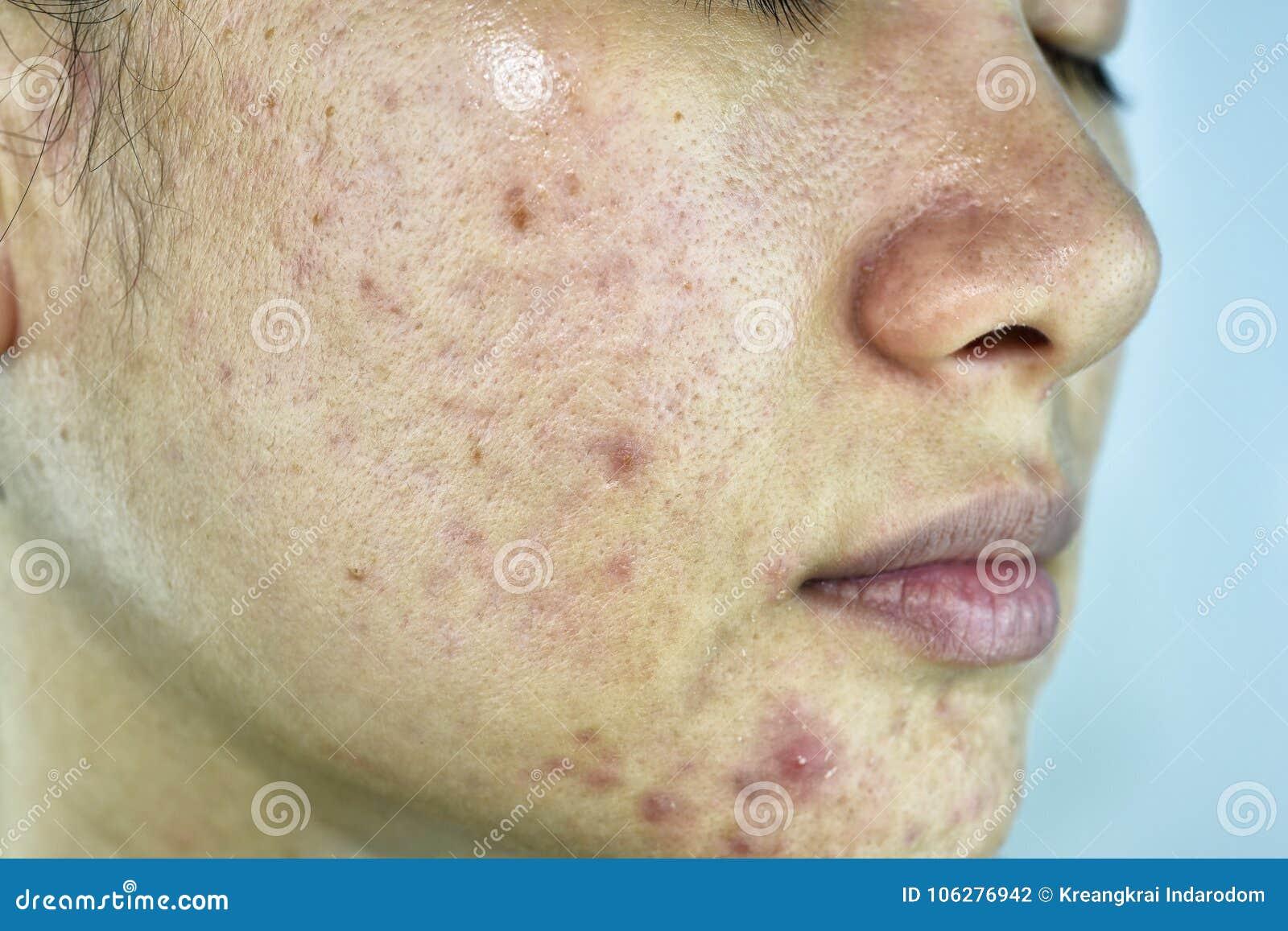 Problema de piel con enfermedades del acné, cierre encima de la cara con las espinillas del whitehead, desbloqueo de la mujer de