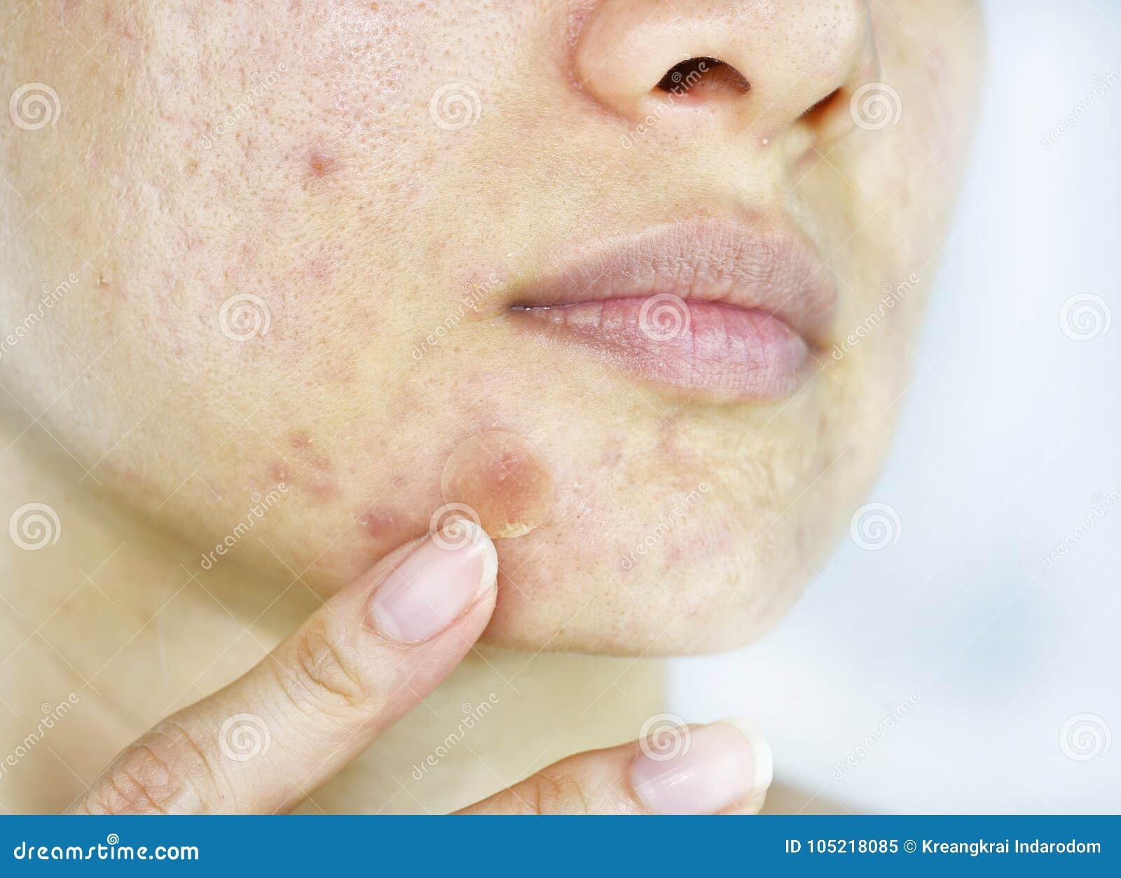 Problema di pelle facciale, fine sul fronte della donna con i brufoli del whitehead e toppa dell acne