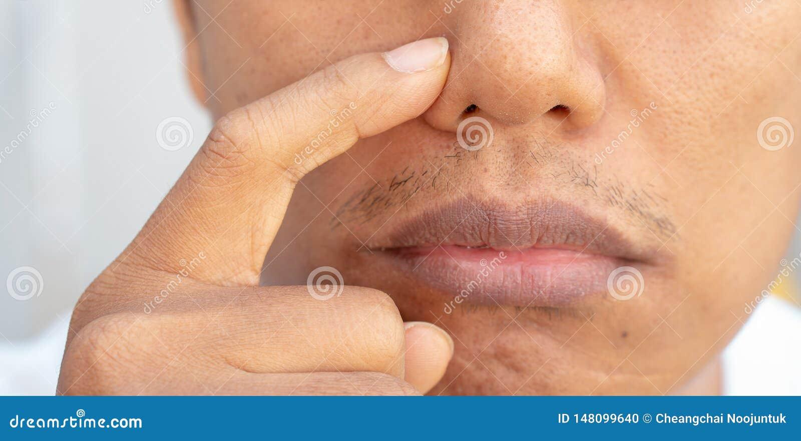 Problemas del acn? en la nariz de hombres