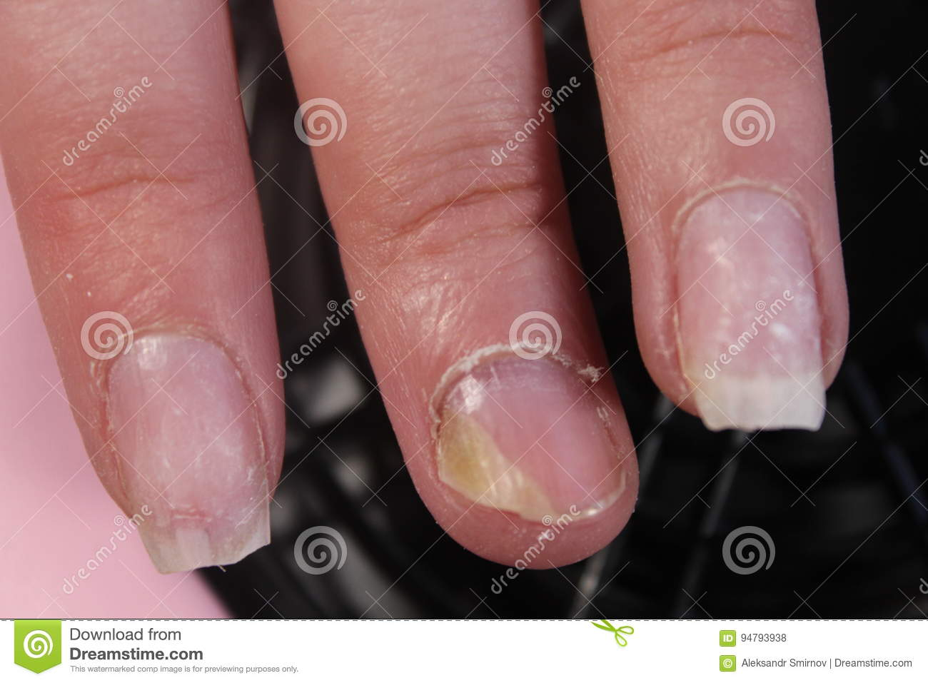 The Problematic, Painful Nails Of A Girl Stock Photo - Image of ...