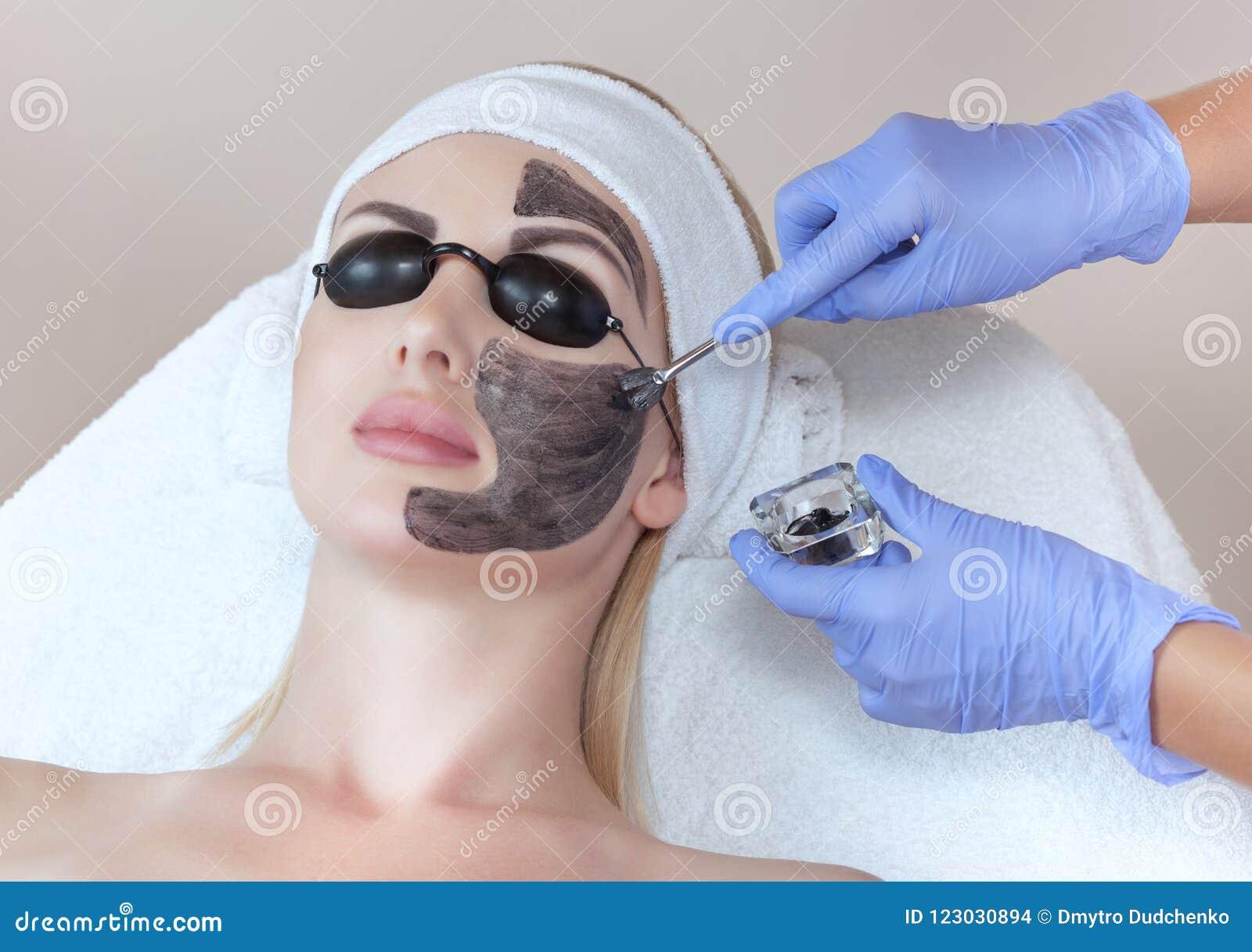 Procedimiento de la peladura de la cara de carbono en un salón de belleza Cosmetología del hardware