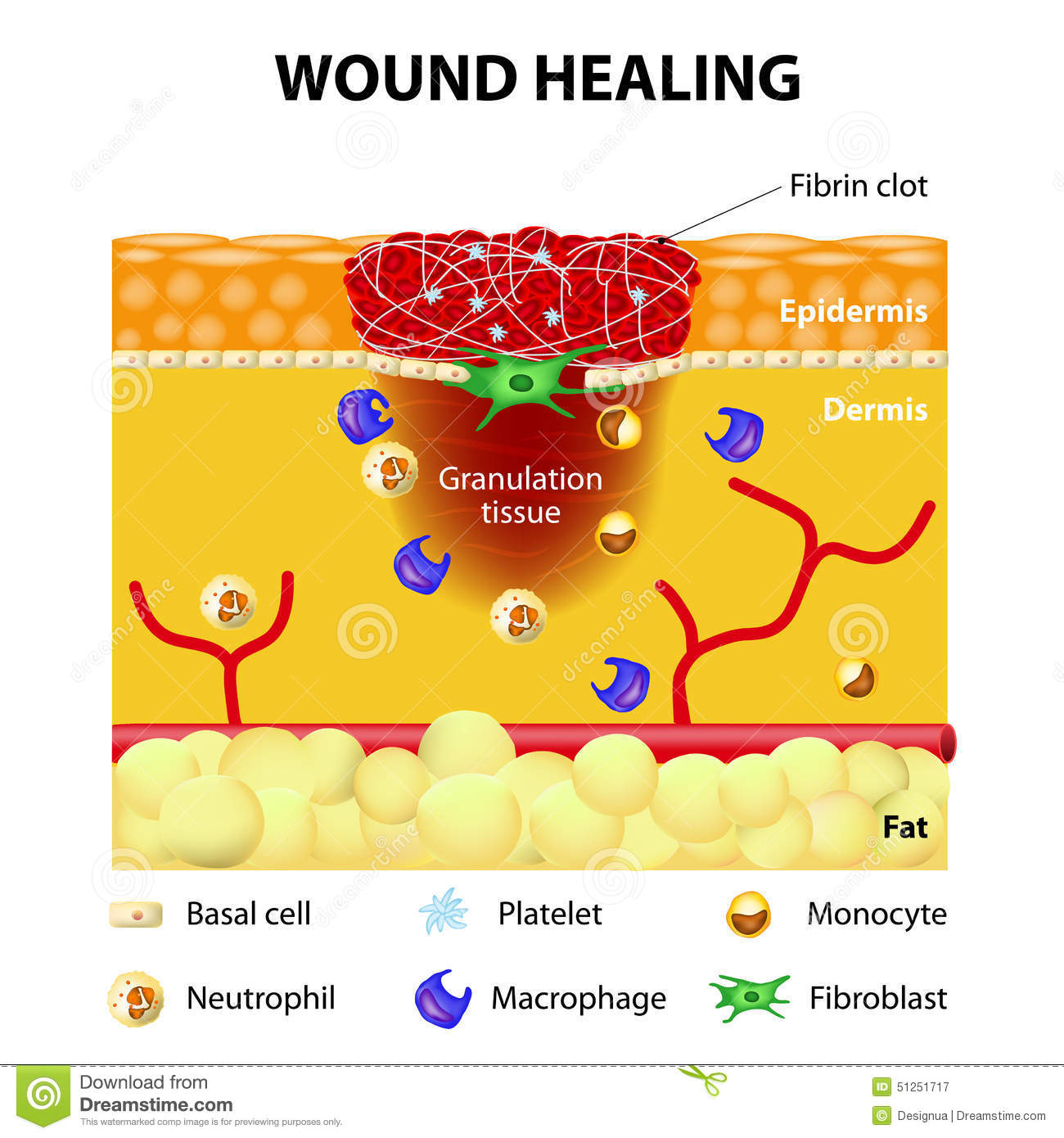 Process of wound healing stock vector  Illustration of
