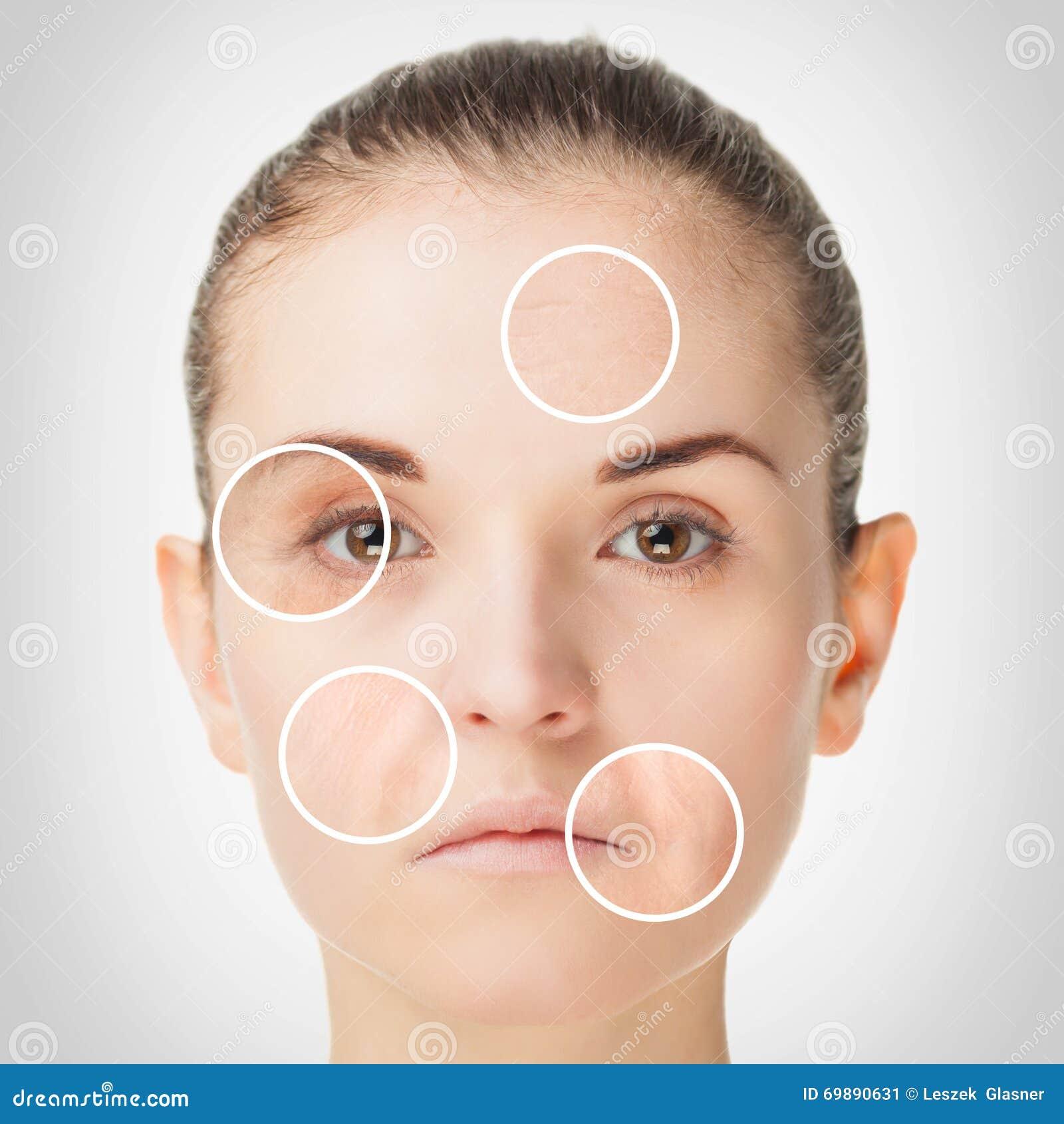 Processus vieillissant, procédures anti-vieillissement de peau de rajeunissement