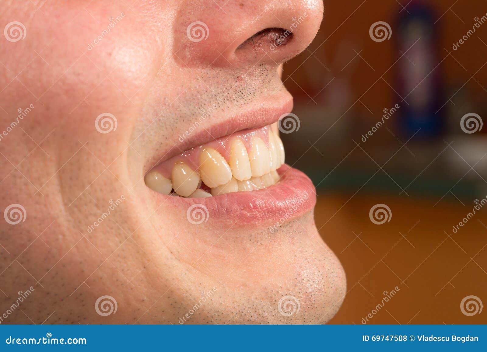 profil denting denting documentar pe dating online