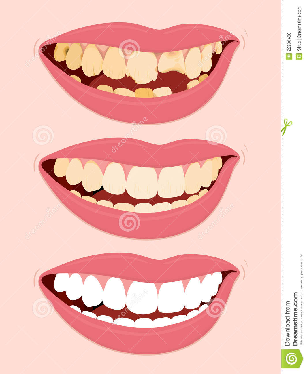 Progressive Stages Of Tooth Decay Caries Royalty Free