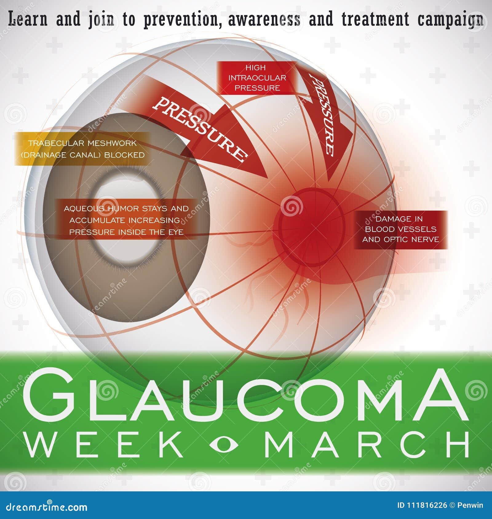 Projeto com uma descrição desta doença da ocular, ilustração da semana da glaucoma do vetor