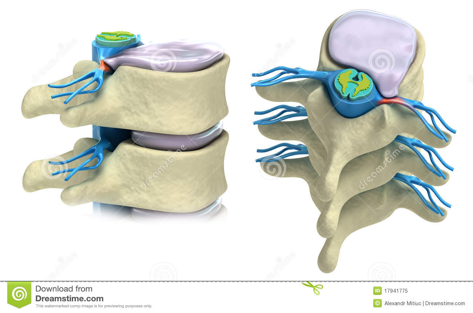 Prolapso do disco intervertebral