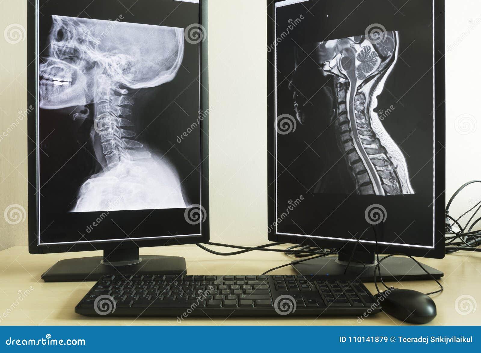 Promieniowanie rentgenowskie i MRI szyja w doktorskim biurze