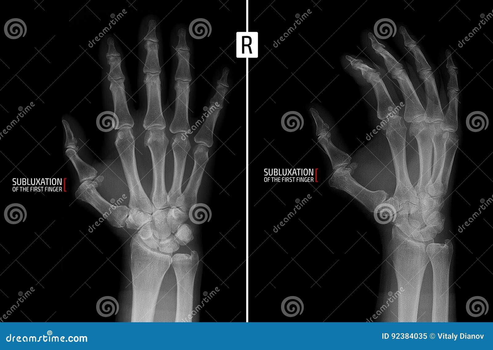 Promieniowanie rentgenowskie ręka Pokazuje subluxation proximal paliczek pierwszy palec prawa ręka markiery