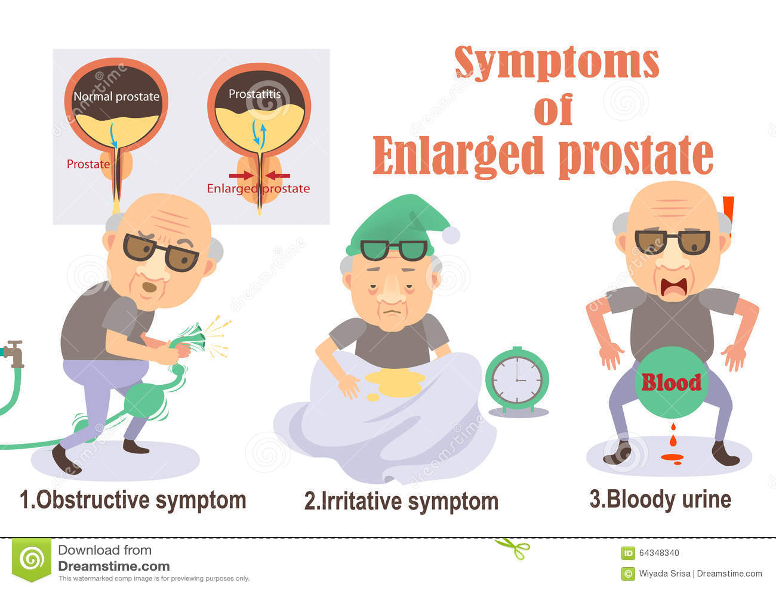 Prostata ingrandetta