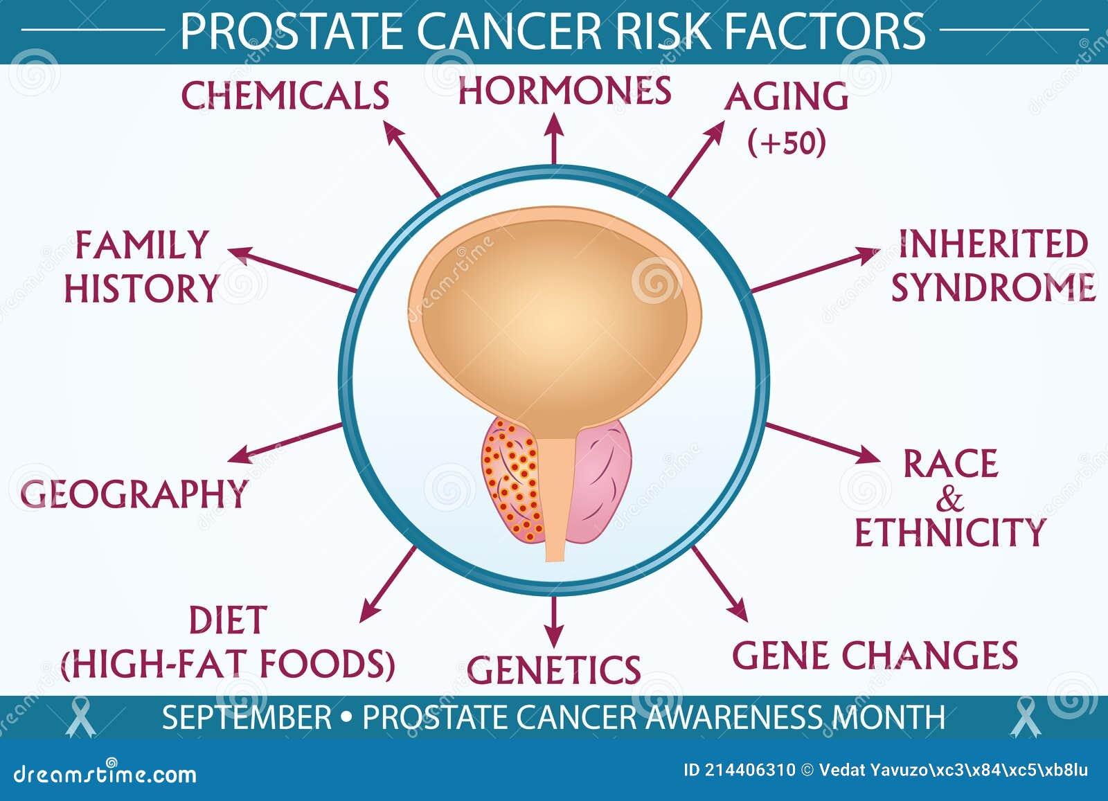 prostatitis and cancer risk