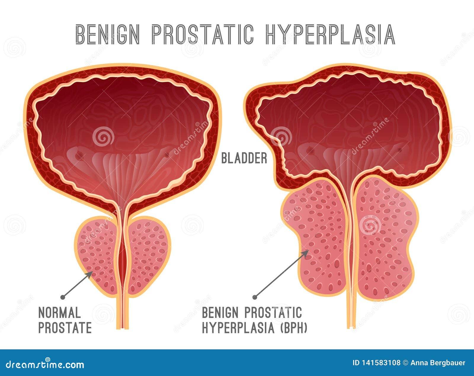 Adenoma della prostata