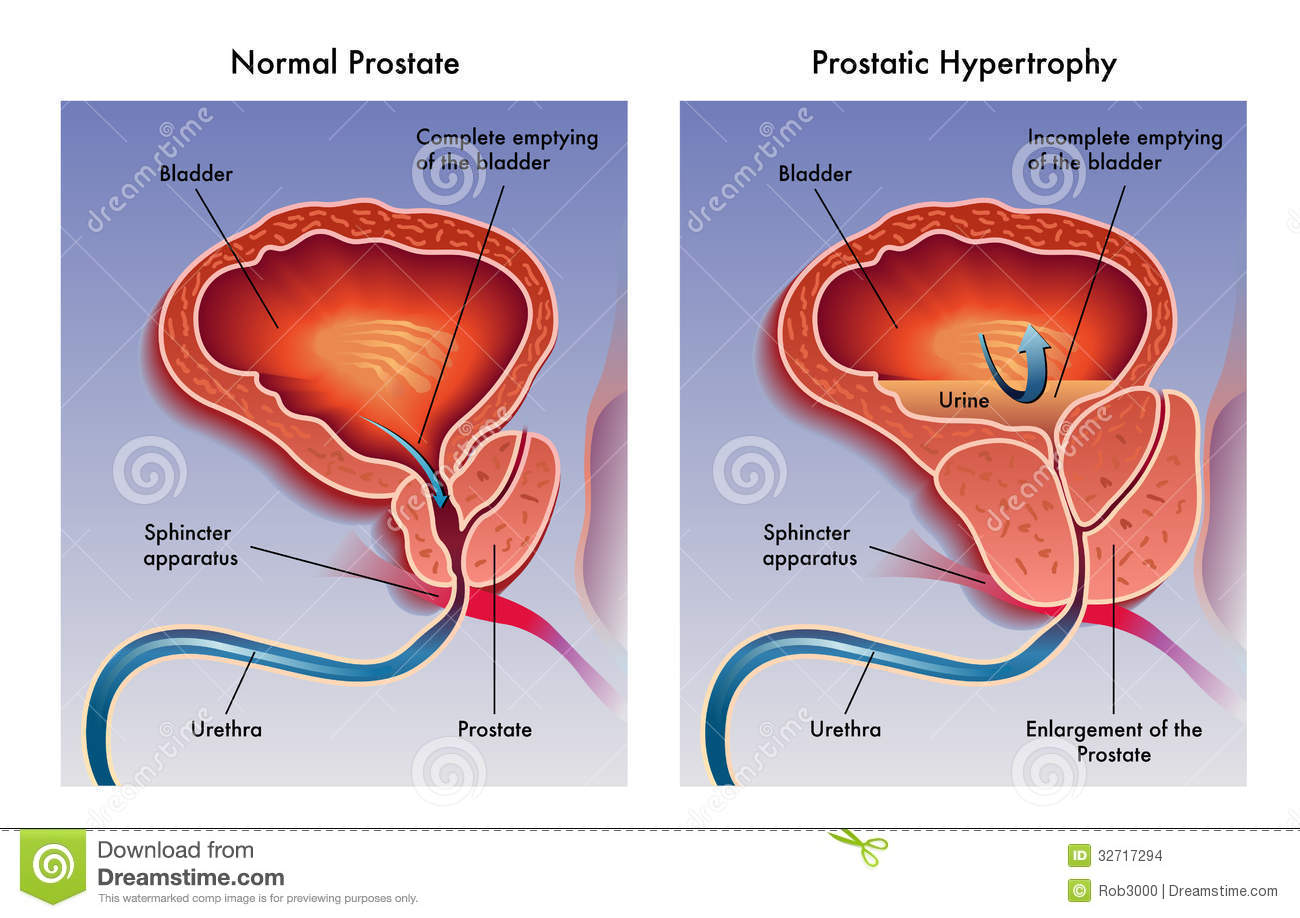 Illustration of the effects of prostatic hypertrophy.