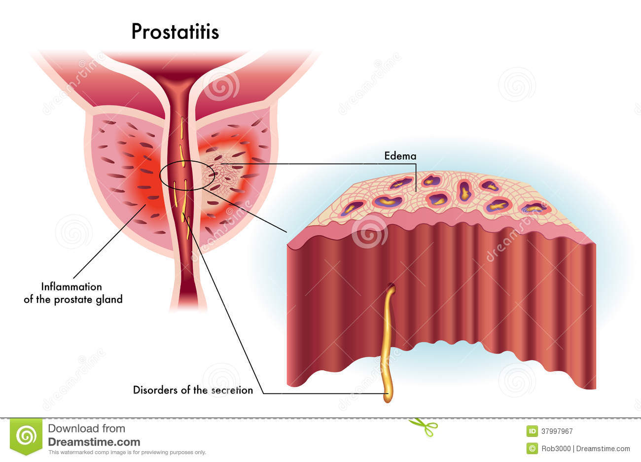 Prostatitis Royalty Free Stock Photography - Image: 37997967