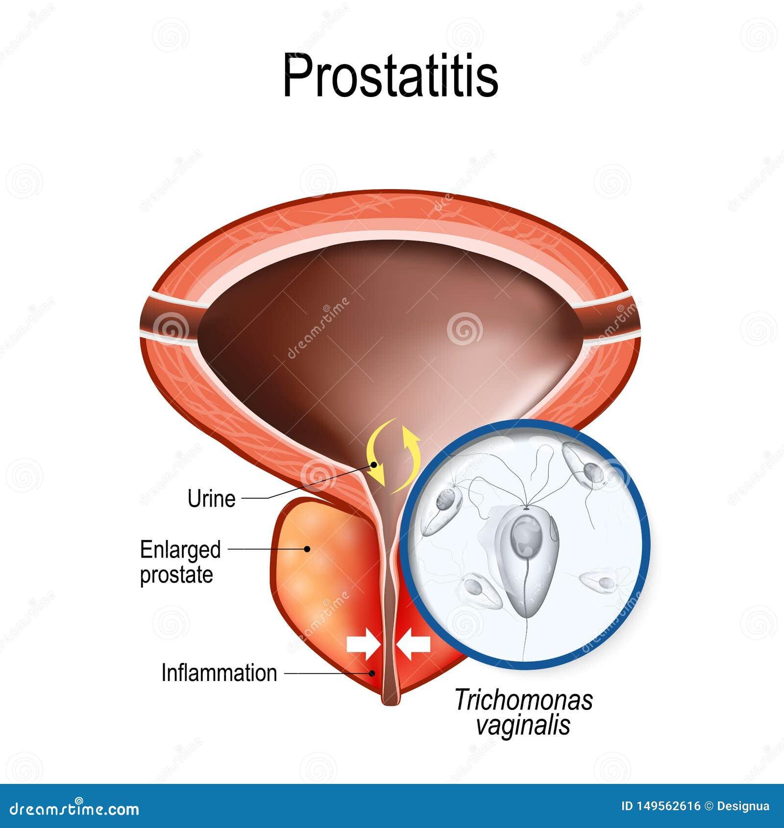 Ureteritis prosztatitis Krónikus prosztatyolaj