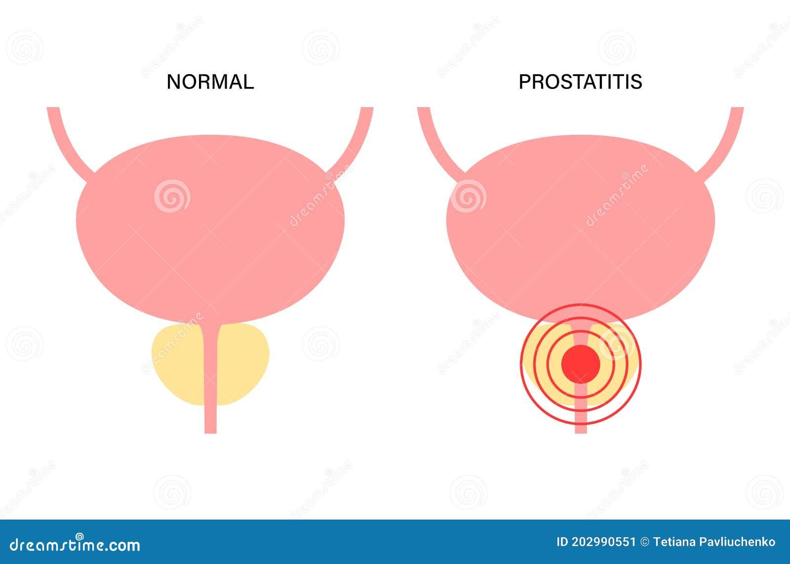 Prostatitis Harbingers