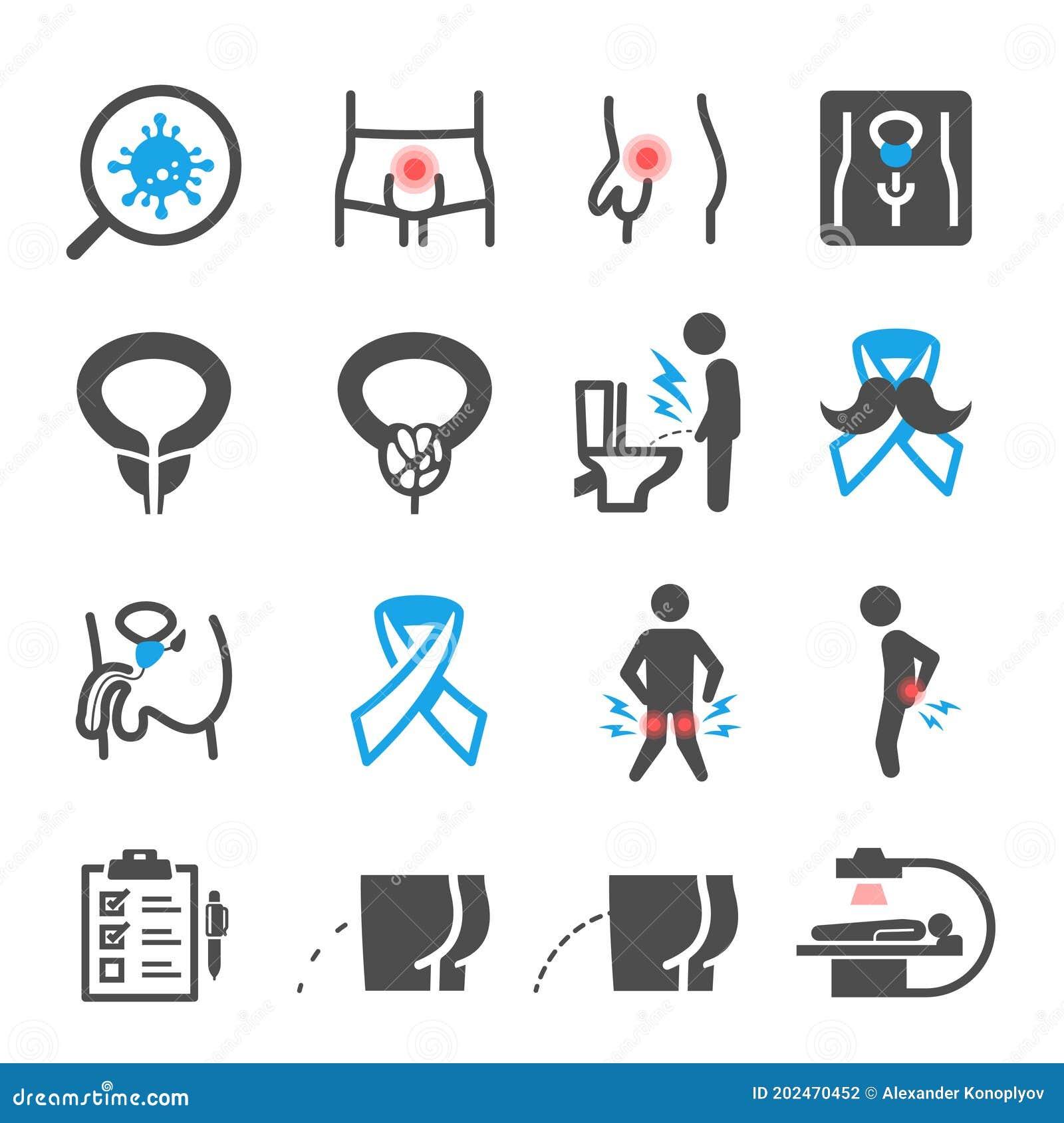 A prosztatagyulladás gyógyításának módja. Prosztata-megnagyobbodás tünetei és kezelése - HáziPatika