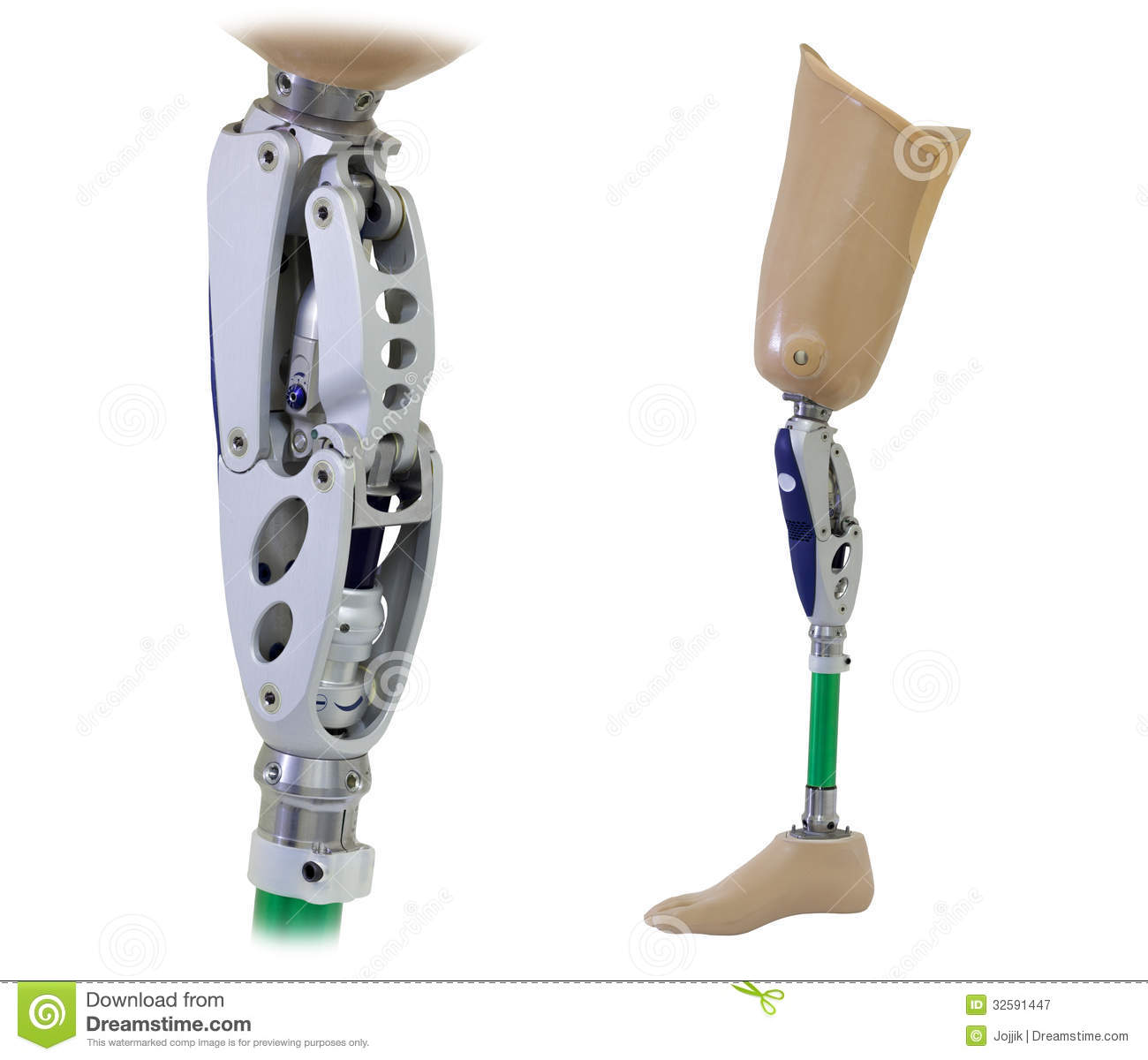 the knee prothesis Although today's implants are designed to last many years, it's possible that at some point in the future — typically 15 to 20 years or more — your prosthetic.