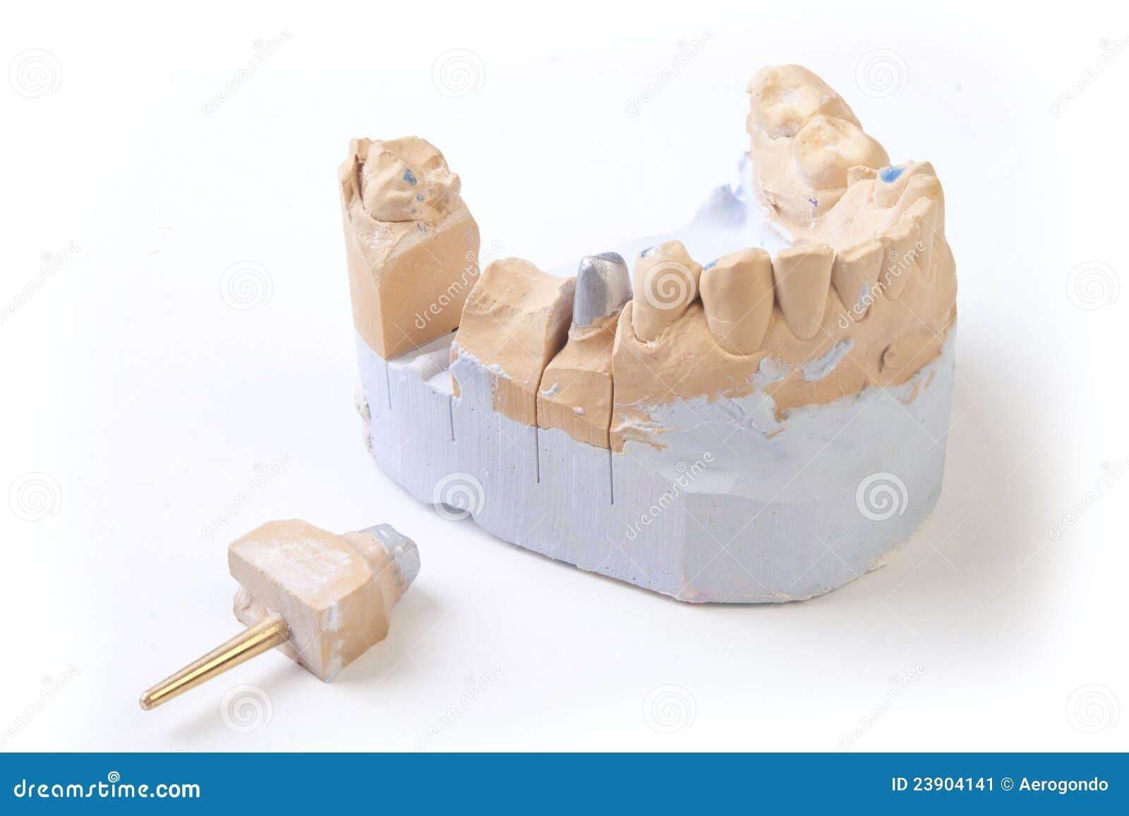 Prothèse d art dentaire