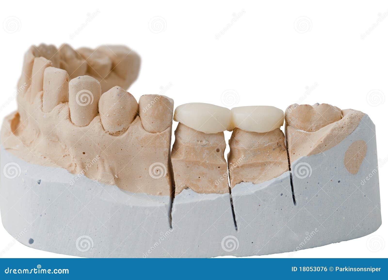 Prothèse dentaire - remplissant