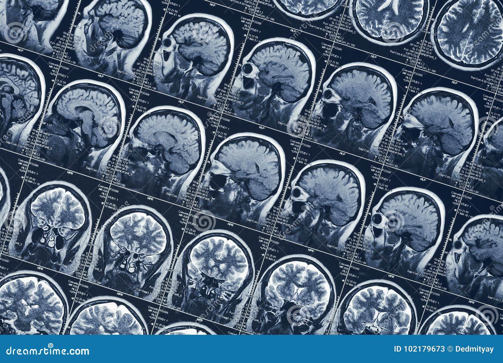 Prova di tomografia del cranio della testa umana di neurologia di scansione del cervello o dei raggi x di RMI