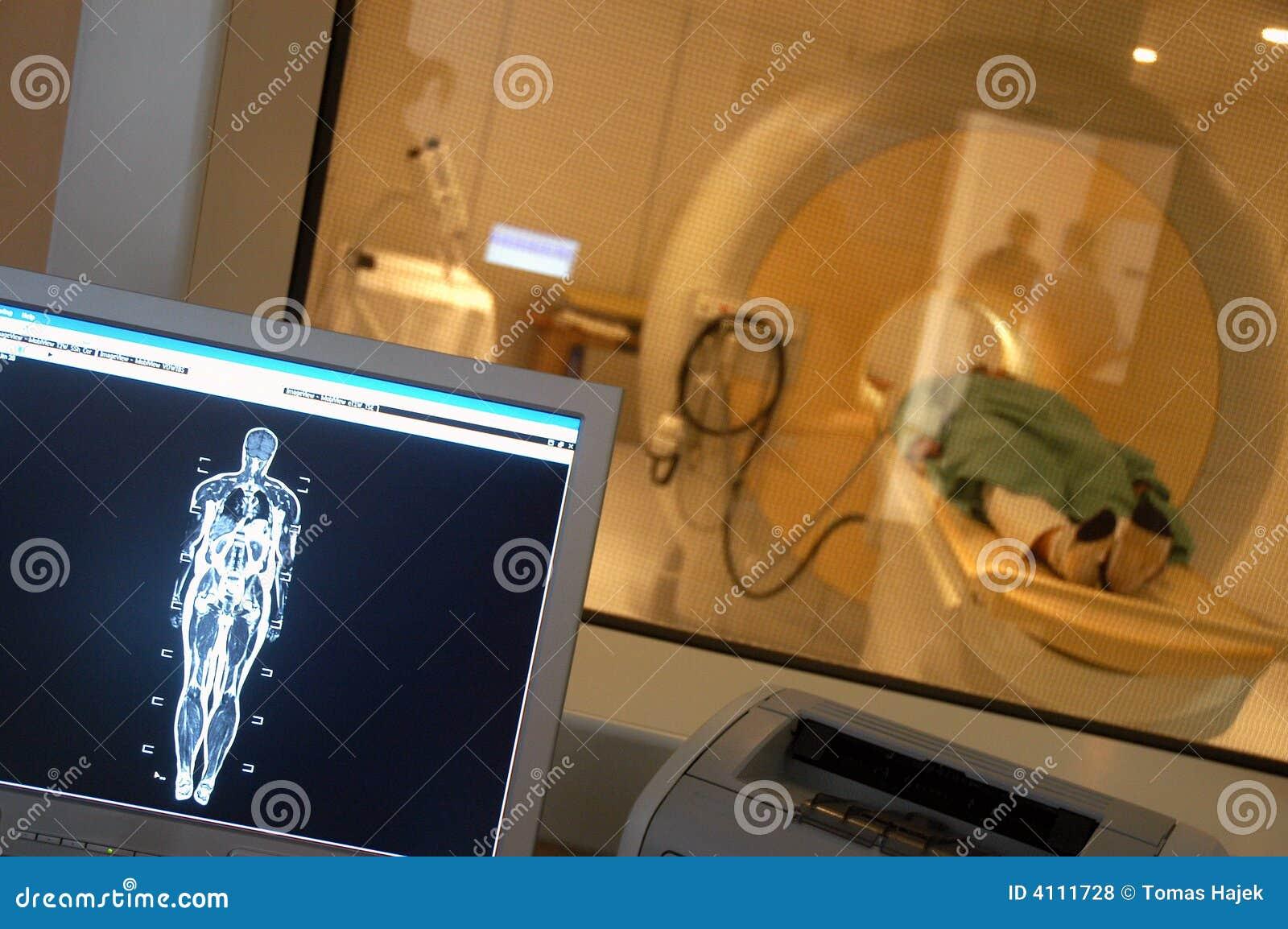Proyección de imagen de resonancia magnética