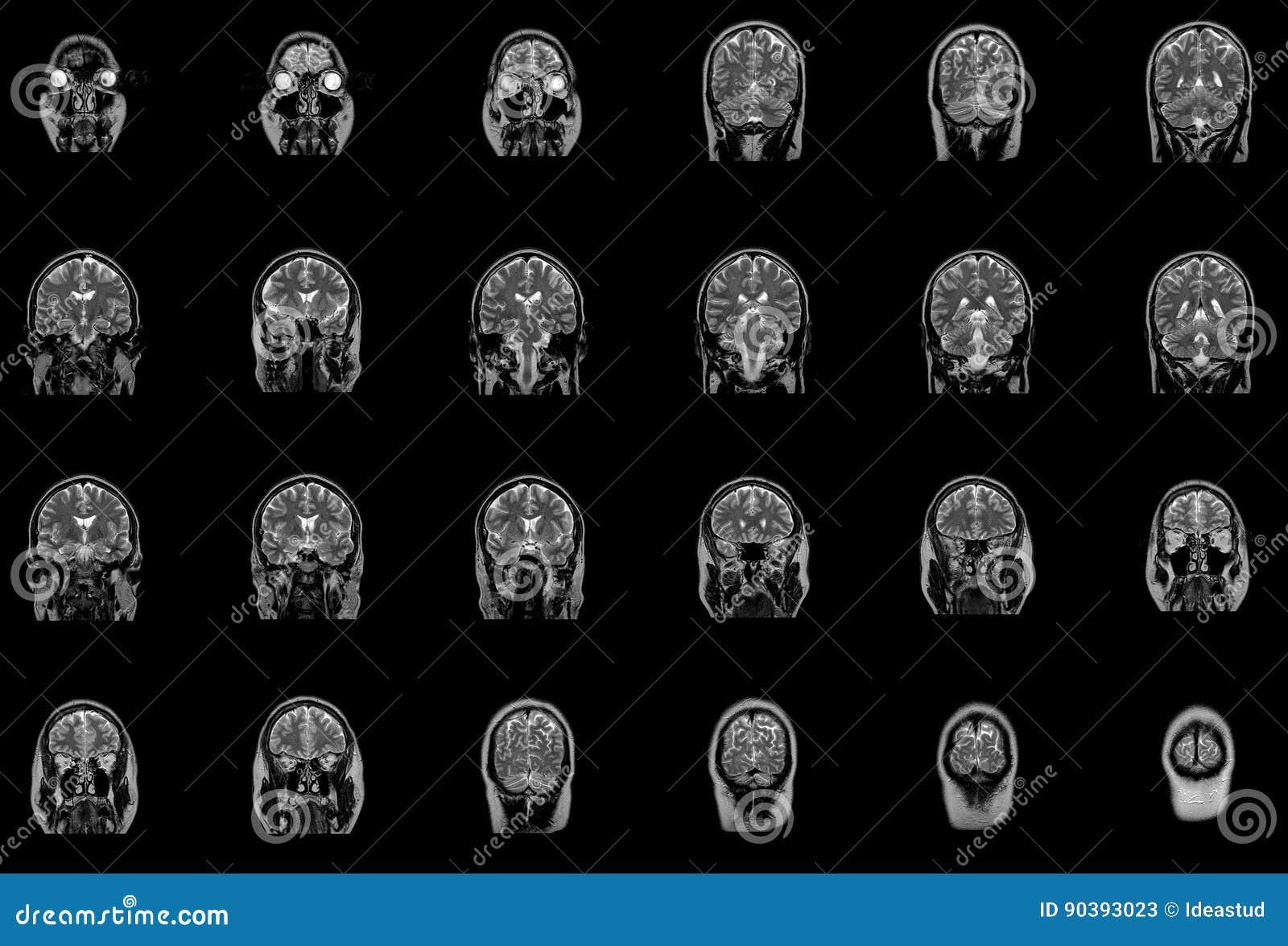 Proyección De Imagen De Resonancia Magnética MRI Del Tronco Del ...