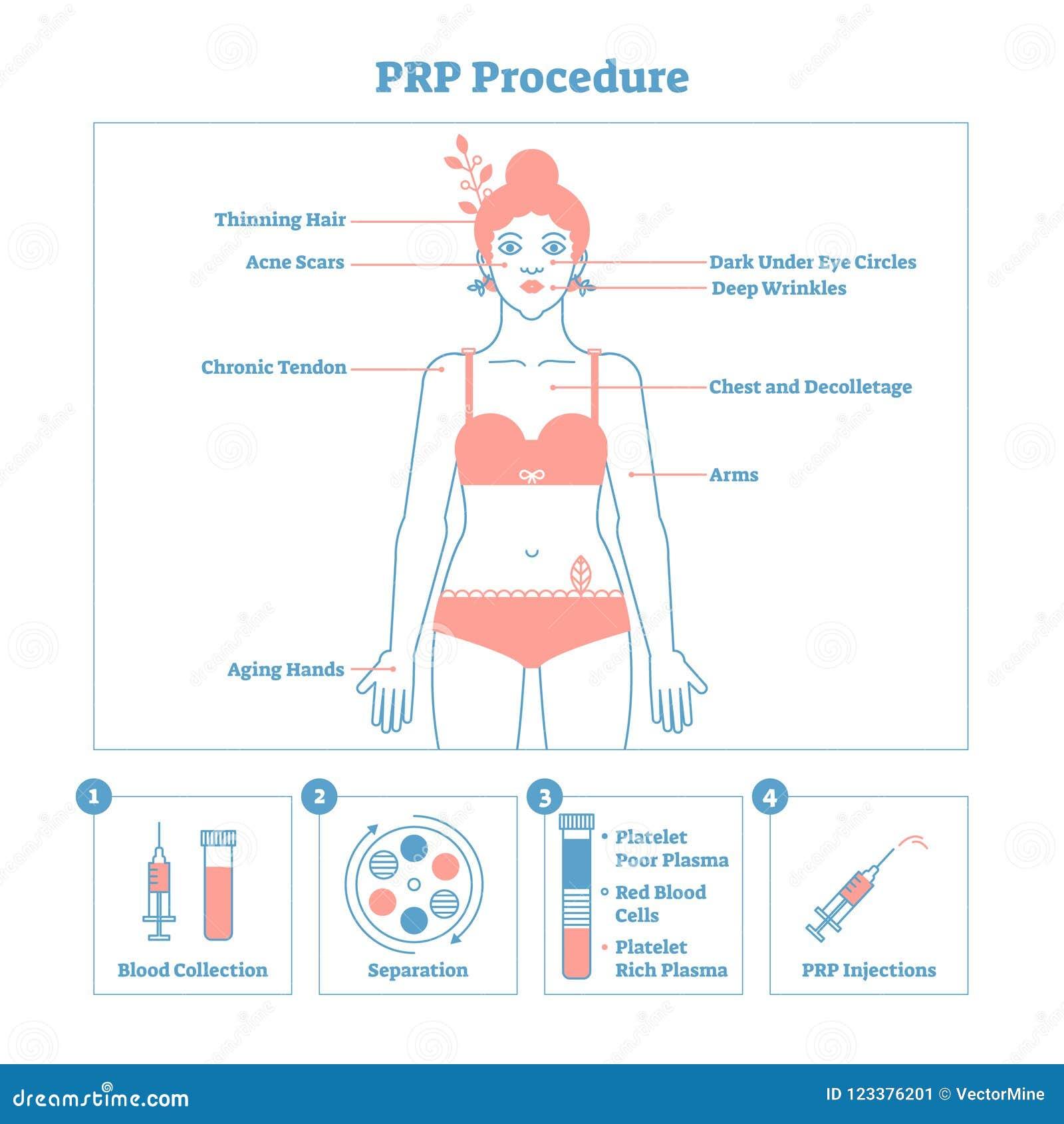 PRP γραφικό διάγραμμα απεικόνισης διαδικασίας διανυσματικό, cosmetology σχέδιο διαδικασίας Ομορφιά γυναικών και skincare