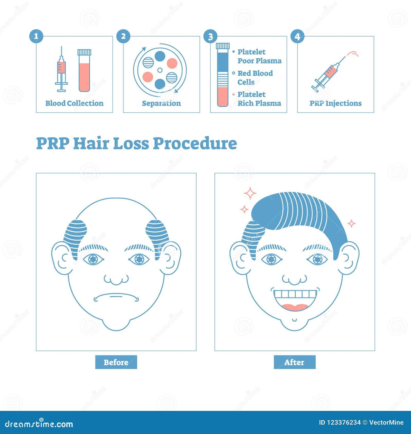 PRP-tillvägagångssättet, skönhet för man` s och hälsocosmetology schemalägger Manlig flintskallighetfrågor och lösning