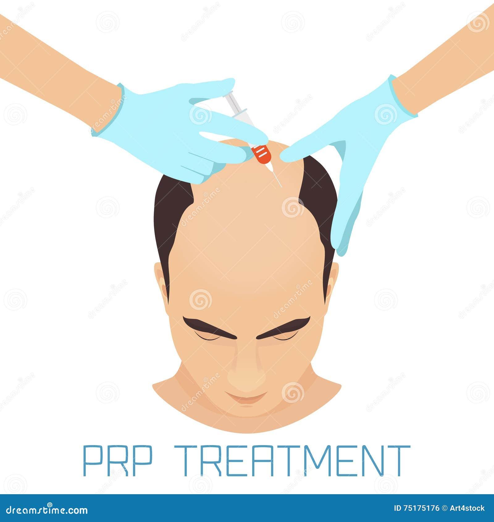 Prp Treatment For Men Stock Vector Image 75175176