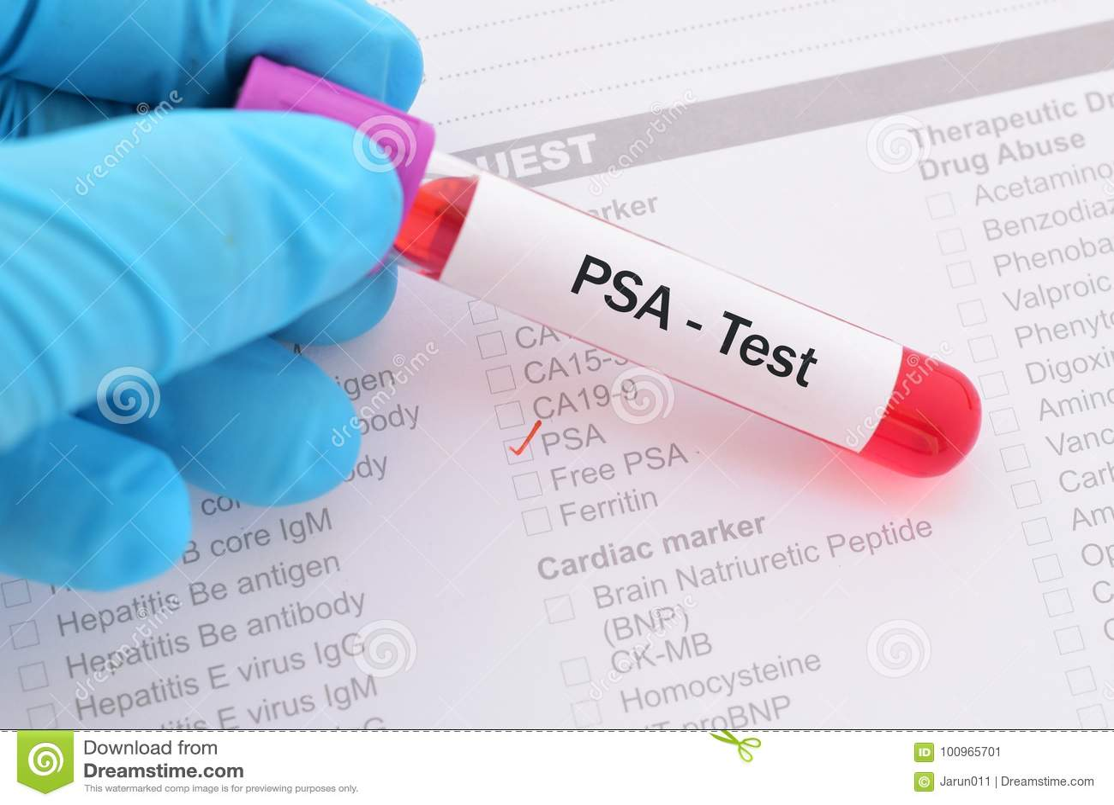para la próstata de sangre