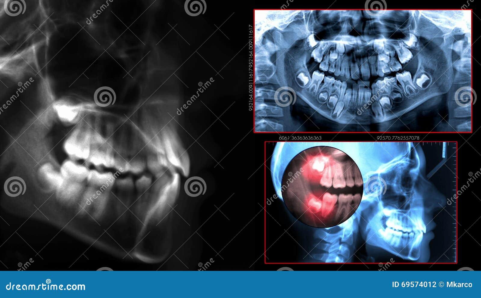 Prześwietlenie stomatologiczny obraz cyfrowy