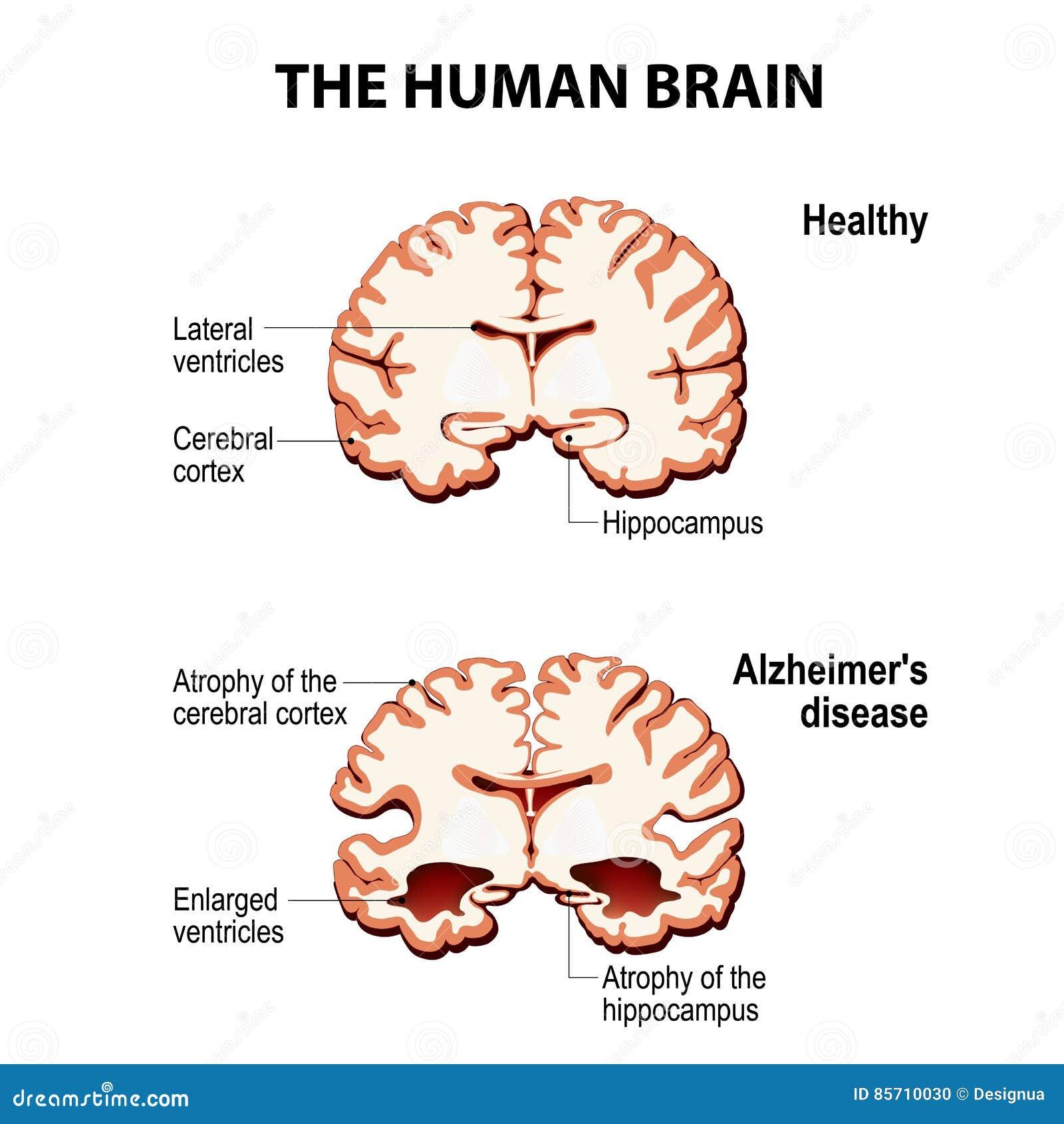 Przekrój poprzeczny ludzki mózg z Alzheimer ` s chorobą