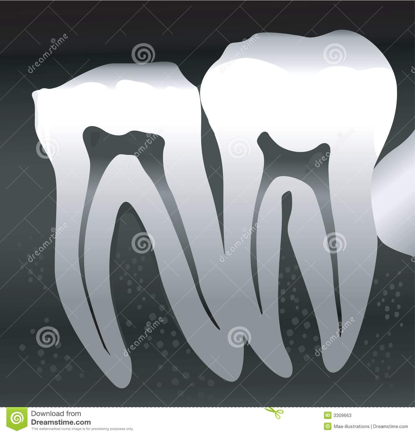 Przekrój poprzeczny Ząb