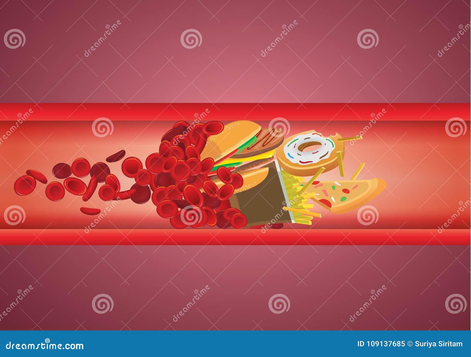 Przepływ krwi blokujący od fasta food które wysokość - sadło i cholesterol