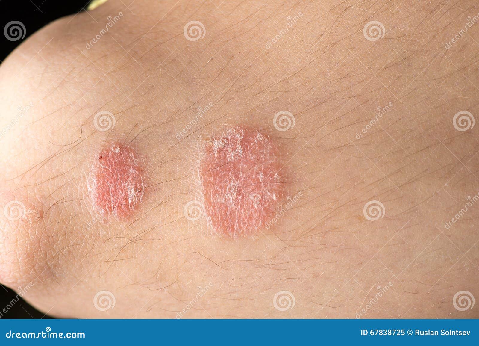 Eczema su pelle di mani e gambe