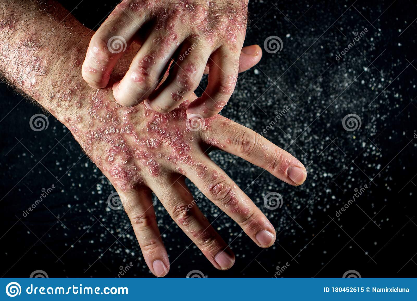 psoriasis scales picture