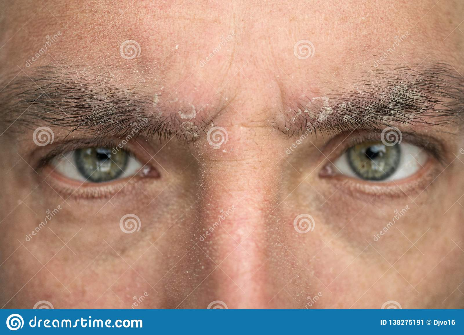 Psoriasis On The Eyebrow Close Up Dermatological Diseases Skin