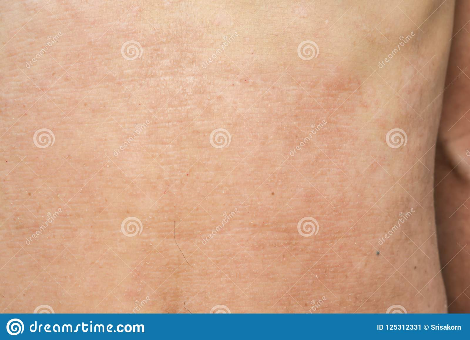 Psoriasis On The Skin Diseases And Conditions Stock Image