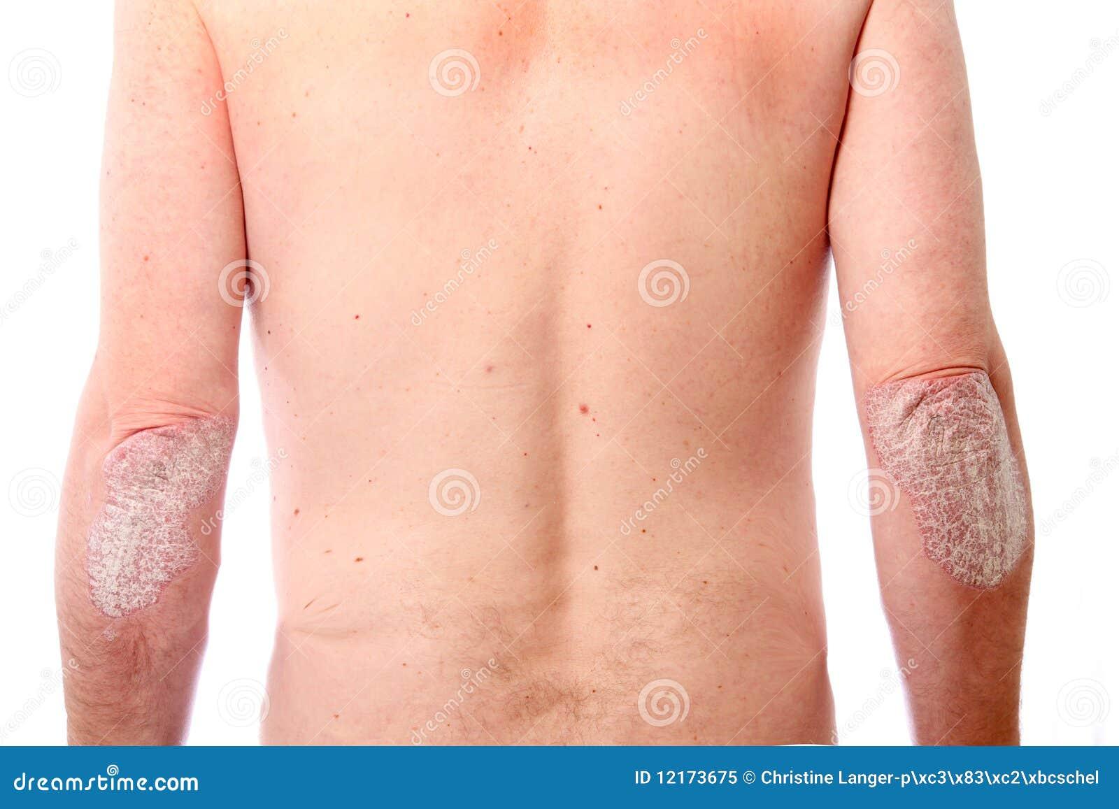 Le psoriasis de la peau dans les images