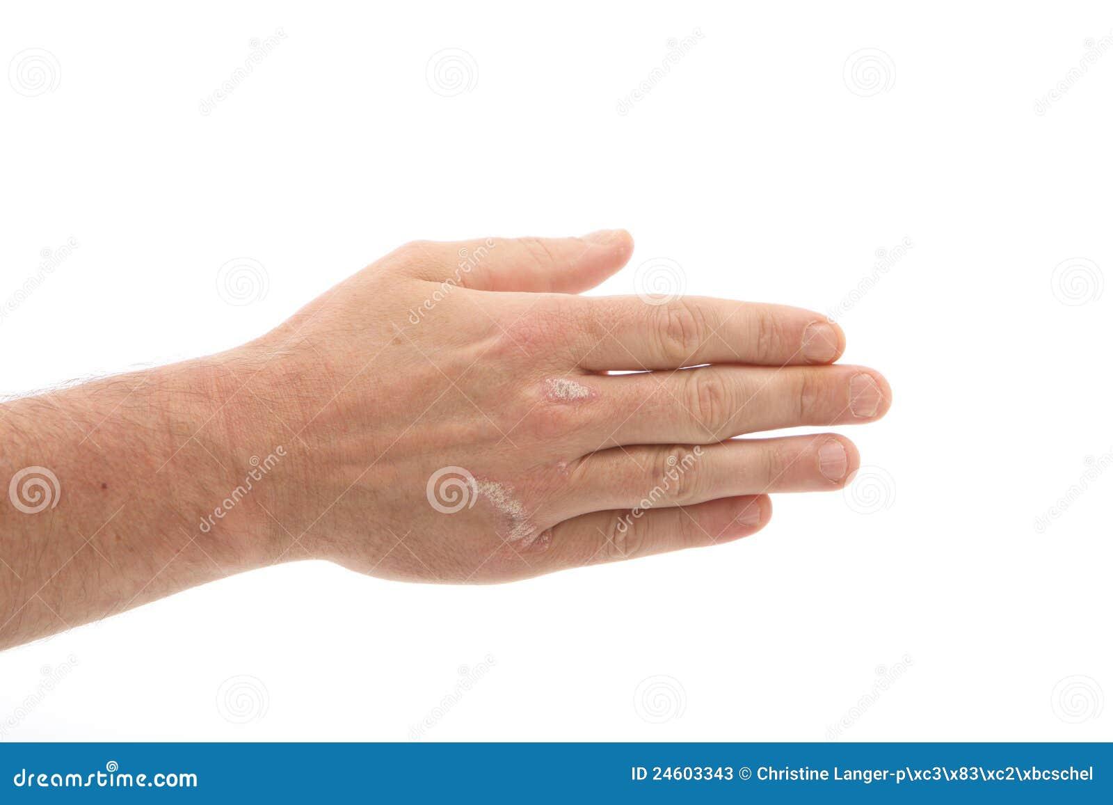 Le moyen des eczémas et le psoriasis à bras