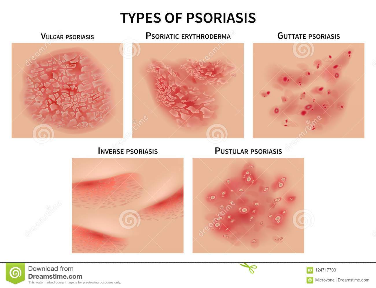Psoriasis Types  Skin Hives, Derma Diseases  Closeup Medical Vector