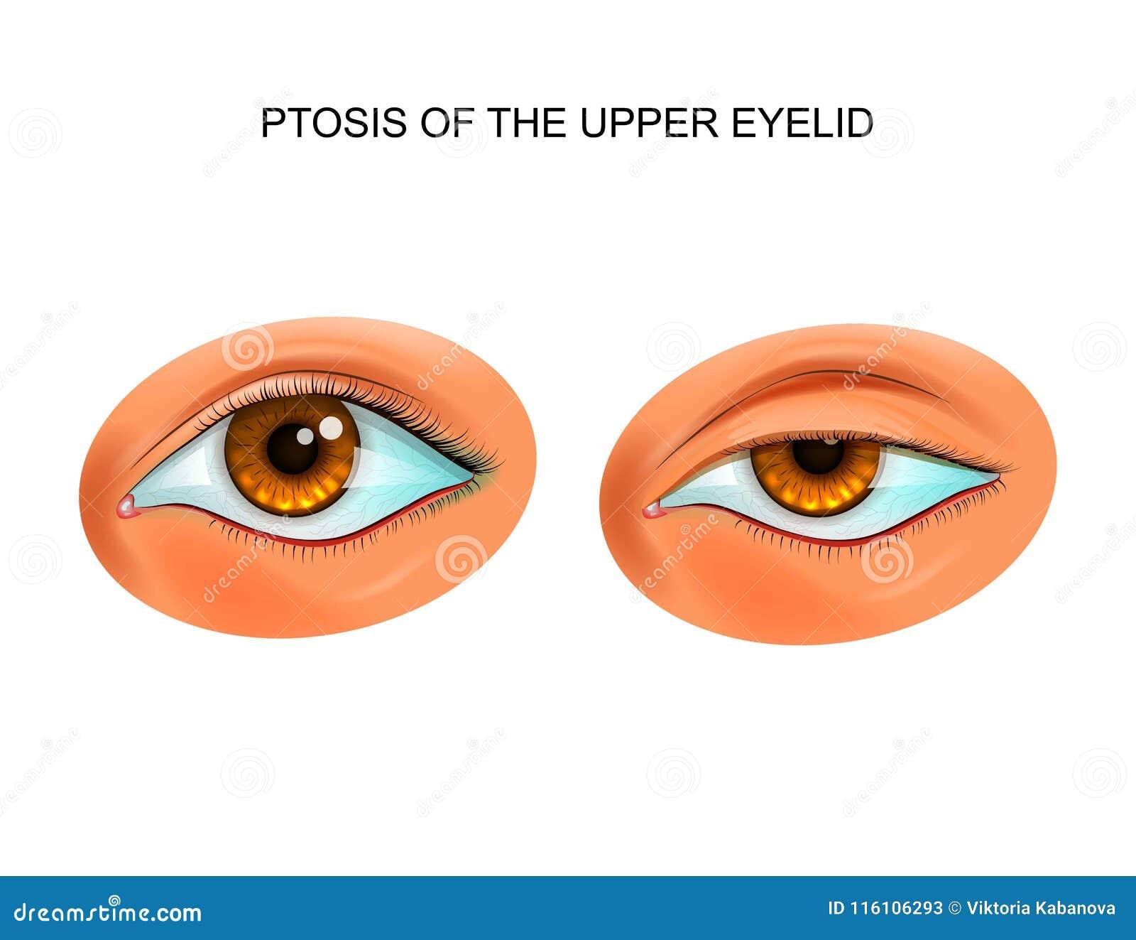 Ptosis av ögonlocket