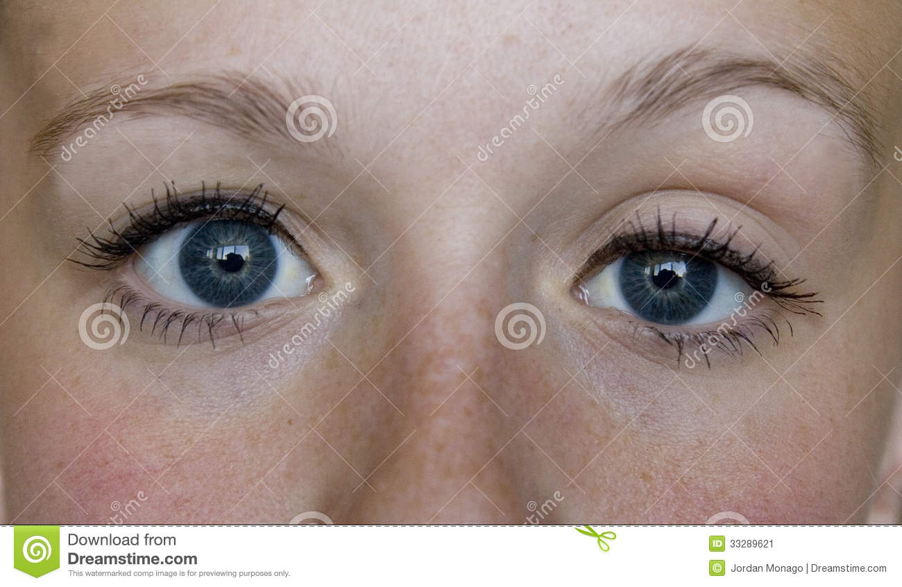 Cure For Glaucoma: Drooping eyelid