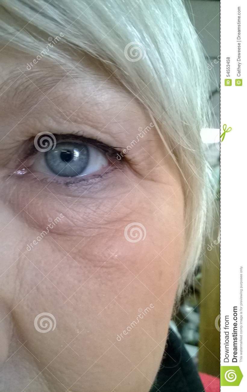 Puffy Eyes Allergy Related Skin Editorial Stock Photo